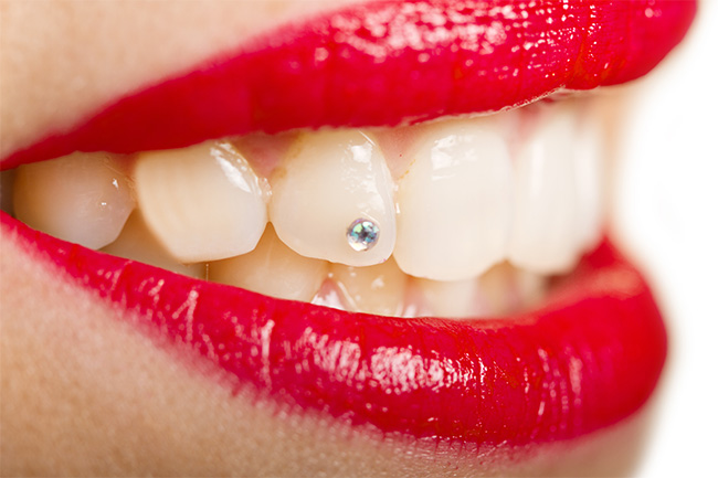Quality Dental Timisoara - Bijuterii Dentare