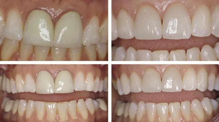 Lucrari pe zirconium in Timisoara la Quality Dental