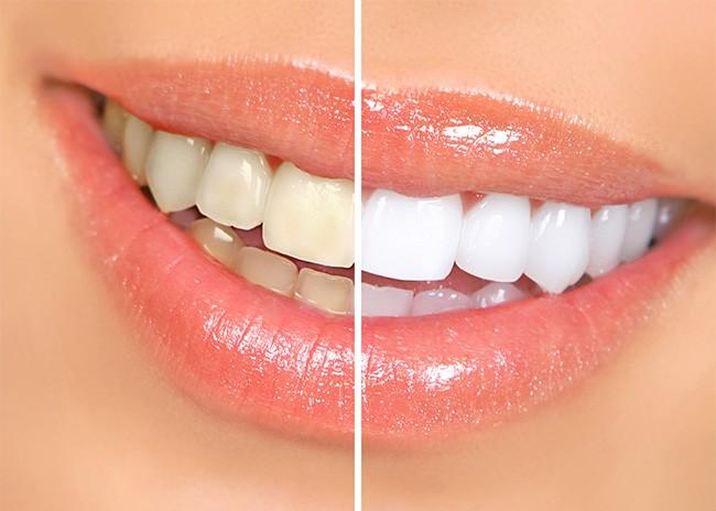 Albire Dentara Timisoara - Rezultate vizibile cu pana la 8 nuante